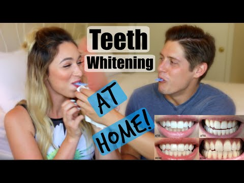 how to get your teeth extremely white