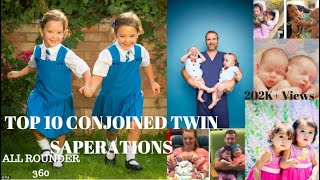 TOP 10 CONJOINED TWIN SEPARATIONS IN WORLD!
