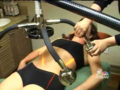 Fat Zapping Laser