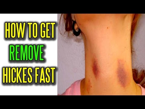 What helps get rid of hickies