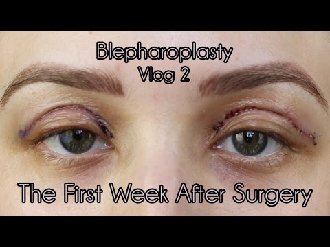 My Eyelid Surgery 1st Weeks of Recovery | Cosmetic