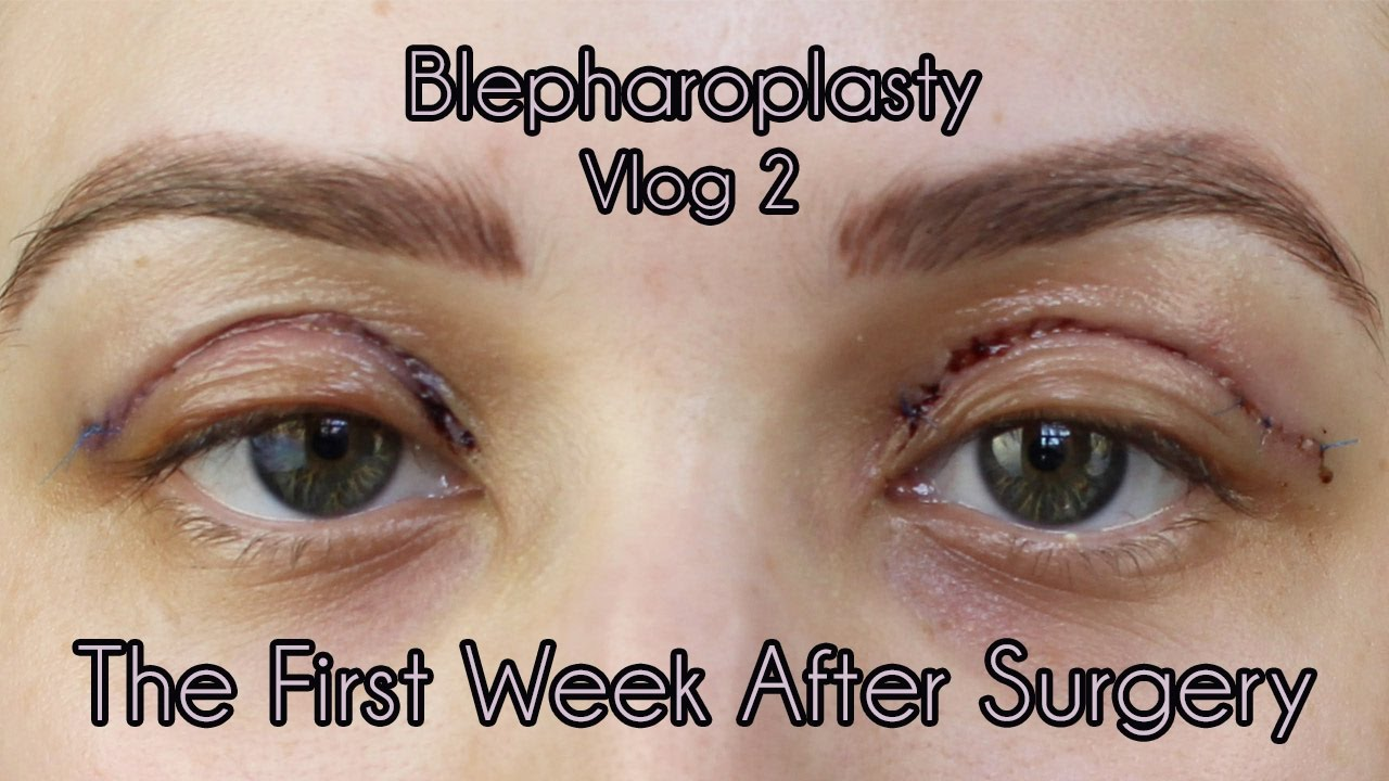 My Eyelid Surgery 1st Weeks Of Recovery Cosmetic Blepharoplasty
