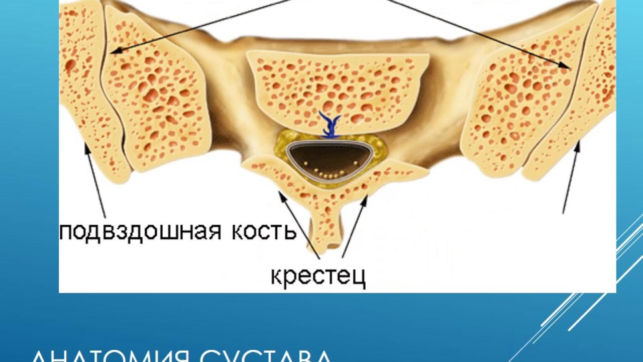 Лечение артроза крестцово подвздошных сочленений. Артроз крестцово ...