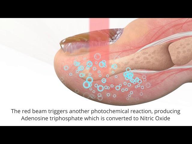 Lunula Laser Animation US Rev 1 050218