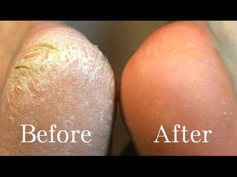 home-remedies-for-cracked-heels-|-remove-cracked-heels-fast-and-easyly-at-home-(live-demo)