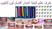 شاهد كيف يتم وضع تقويم الاسنان مع د مصطفي اسامه See How We Put Dental Braces Youtube