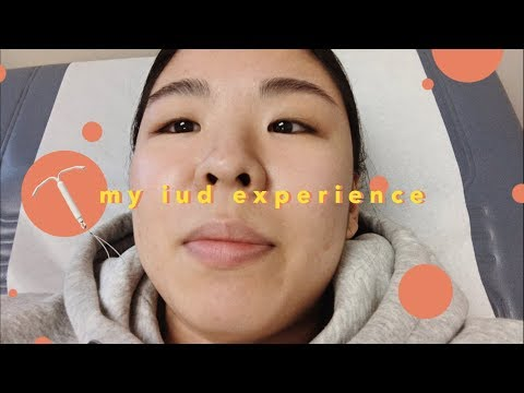 my-iud-experience---things-to-know