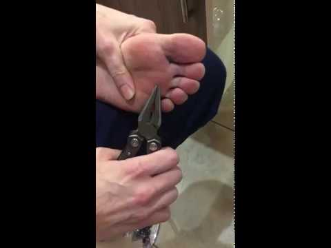 Doc Reno - Large Spliter Removed from Foot