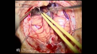 Repeat youtube video Pineal tumor surgery - subtentorial supracerebellar approach