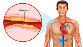 5 Foods That Lower Cholesterol Naturally