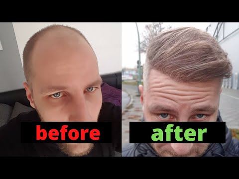 From Day 0 to Month 12 - Hair Transplant Turkey Comparison