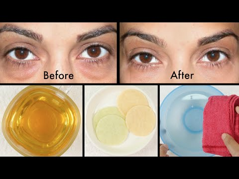 How to Get Rid of Puffy Eyes and Swollen Eyelids & Dark Circles