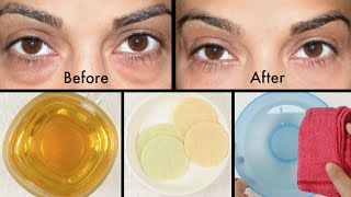How to Get Rid of Puffy Eyes, Swollen Eyelids & Dark Circles