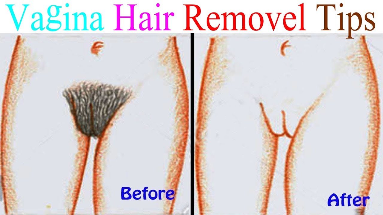 Pubic Hair Removal, How To Remove Pubicvagina Hairs, Vagina Waxing