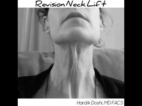 Revision Neck Lift