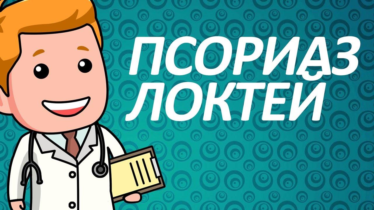 В каких случаях необходимо лечение псориаза