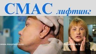 СМАС подтяжка лица: отзыв пациентки. Тимур Кобулашвили