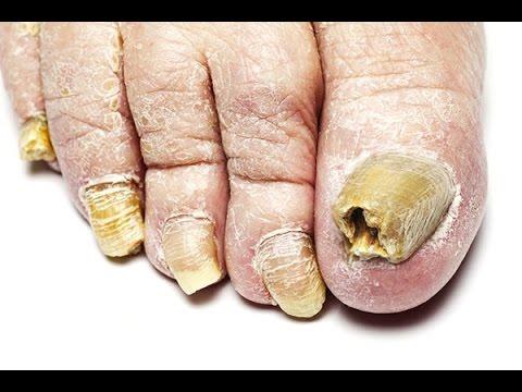 Грибок ногтей: причины возникновения - О самом главном