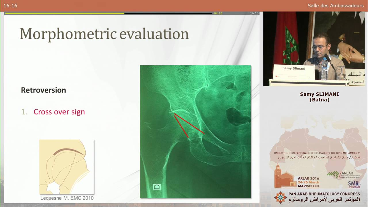 emc rhumatologie