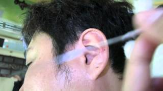 ear cleaning. ear picking, ear wax removal