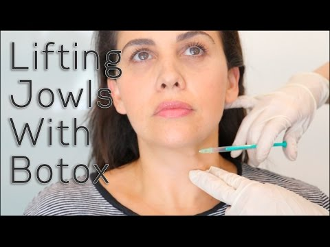 Lifting Jowls With Botox - YouTube