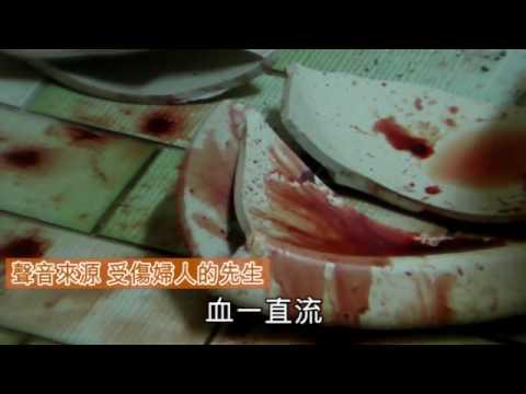 「臉盆割傷」的圖片搜尋結果
