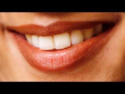 Homemade Teeth Whitening Remedy Hindi Youtube