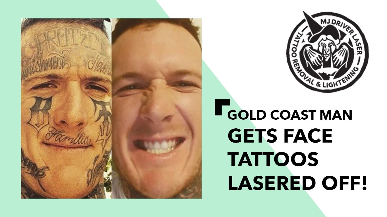 Gold coast man with face tattoos gets them lasered off for Working man tattoo