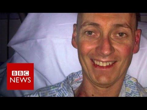 Cancer treatment for MS hailed – BBC News