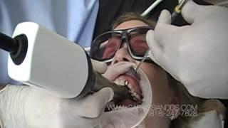 Restoring a Broken Tooth Using The CEREC