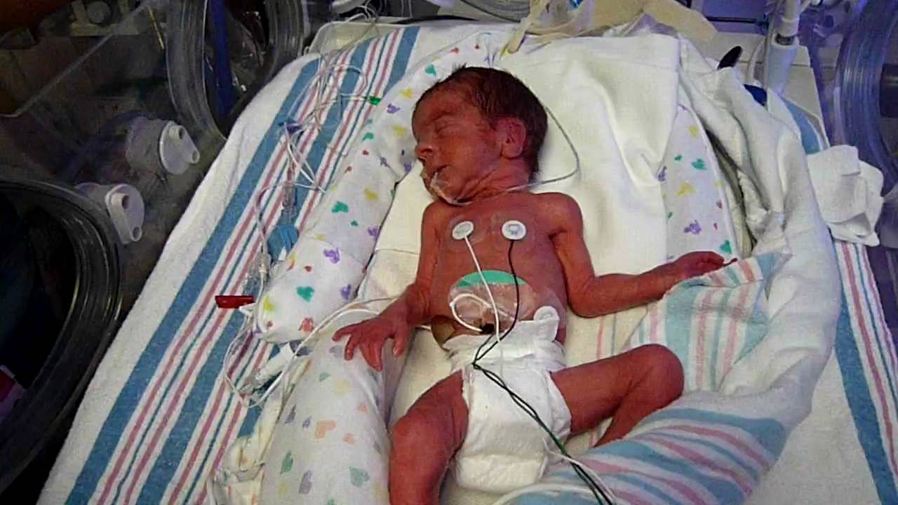 babies born at 28 weeks and 2 days