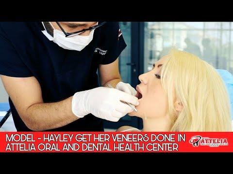 Model Hayley Bradley Chooses Attelia For Her Hollywood Smile Design