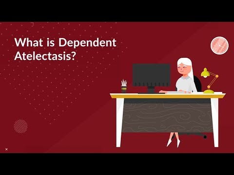 What is Dependent Atelectasis? (Collapsed Lung)