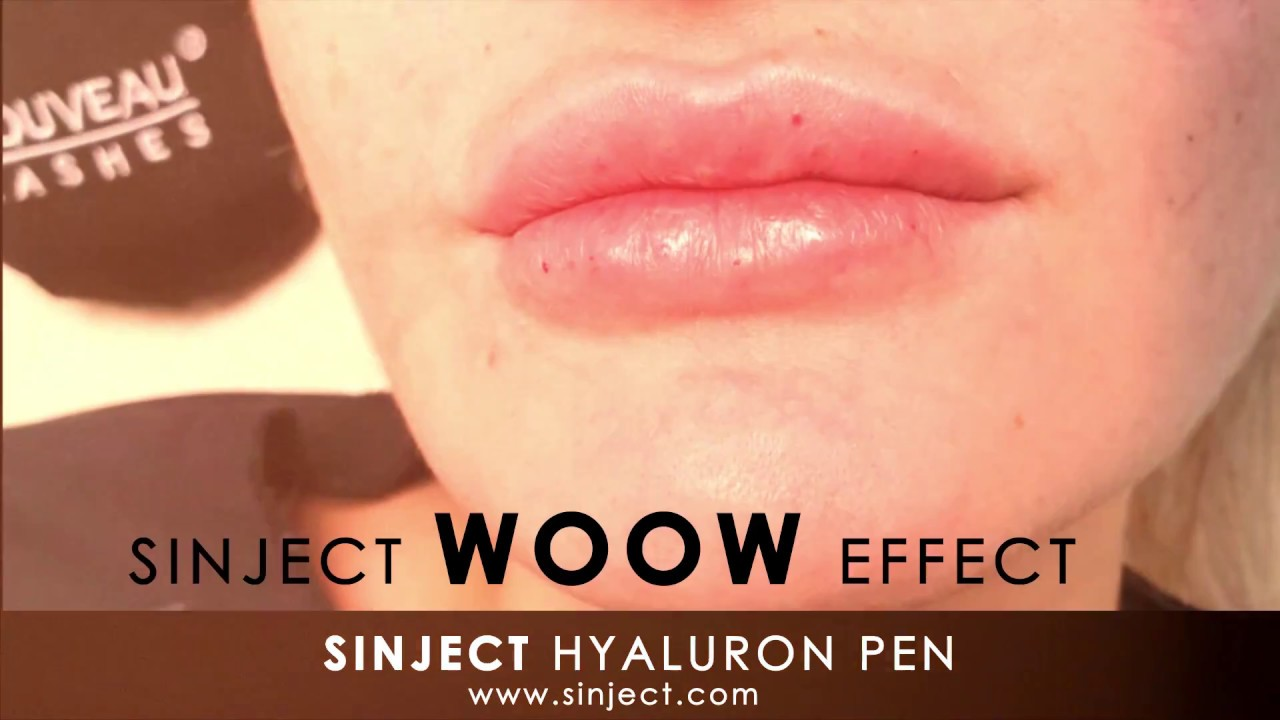 Fillers Without Needles: The Hyaluron Pen