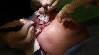 Yläluomileikkaus RF Tekniikka