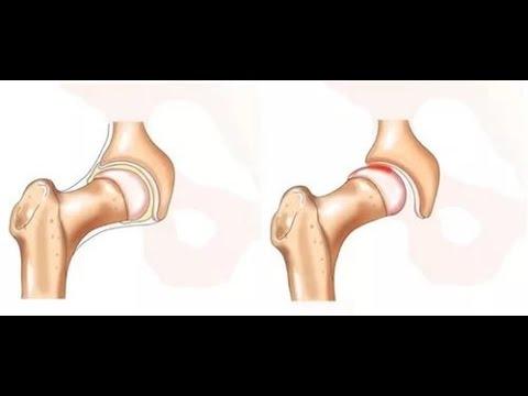 Сустав тазобедренный: боль, симптомы болезней, лечение