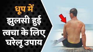सनबर्न से छुटकारा पाने का सब से आसान और असरदार उपाय    Best Home Remedy For Sunburn Skin (2019)