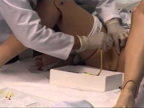 How To Insertion Female Foley Catheter  Indwelling Urinary Catheter  How to Put Foley Catheter from YouTube · Duration:  11 minutes 20 seconds