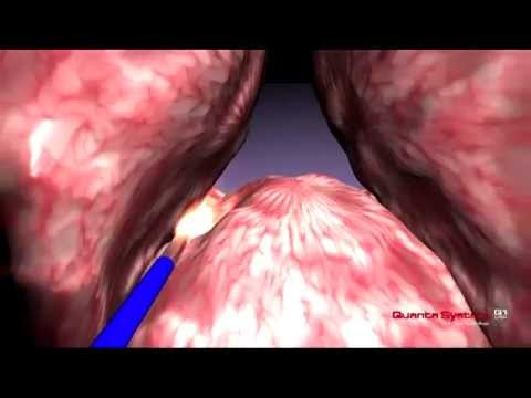 Quanta System - BPH - 3D Enucleation (median lobe) - Thulium Laser