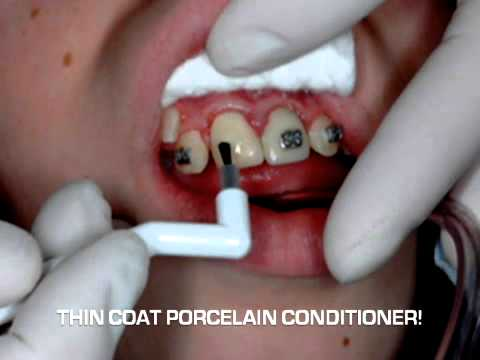 Instruction Video For Bonding To Porcelain Crowns And Veneers Youtube
