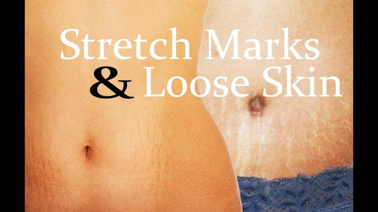 models stretch marks Hiring twink