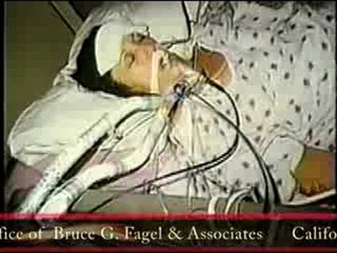 VBAC California Medical Malpractice Attorney Dr. Bruce Fagel on Channel 10 News