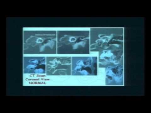 Temporal Bone Imaging