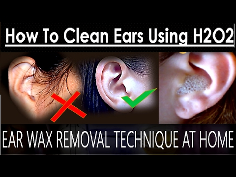 Ear Wax Removal Technique at Home | How To Clean Ears Using Hydrogen Peroxide