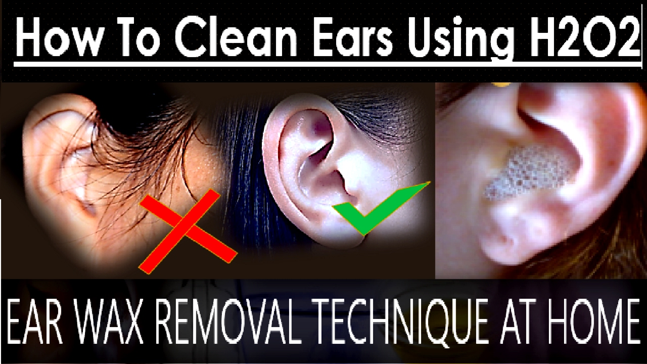 Ear wax removal technique at home how to clean ears using hydrogen ear wax removal technique at home how to clean ears using hydrogen peroxide solutioingenieria Images