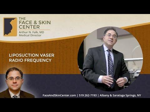 Liposuction Vaser Radio Frequency