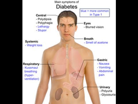 Diabetes - Prevention is Better than Cure