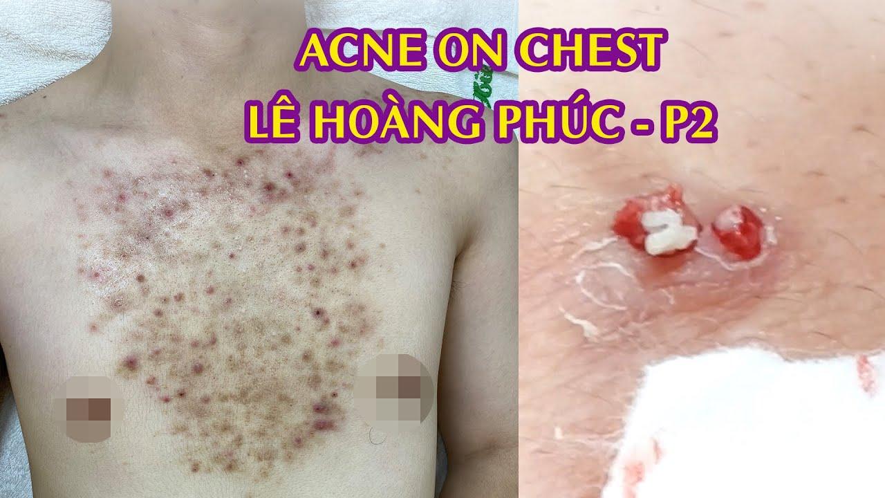 Removing Acne On Chest For You Male | Điều trị mụn ngực Lê Hoàng Phúc |  Part 2 | 520