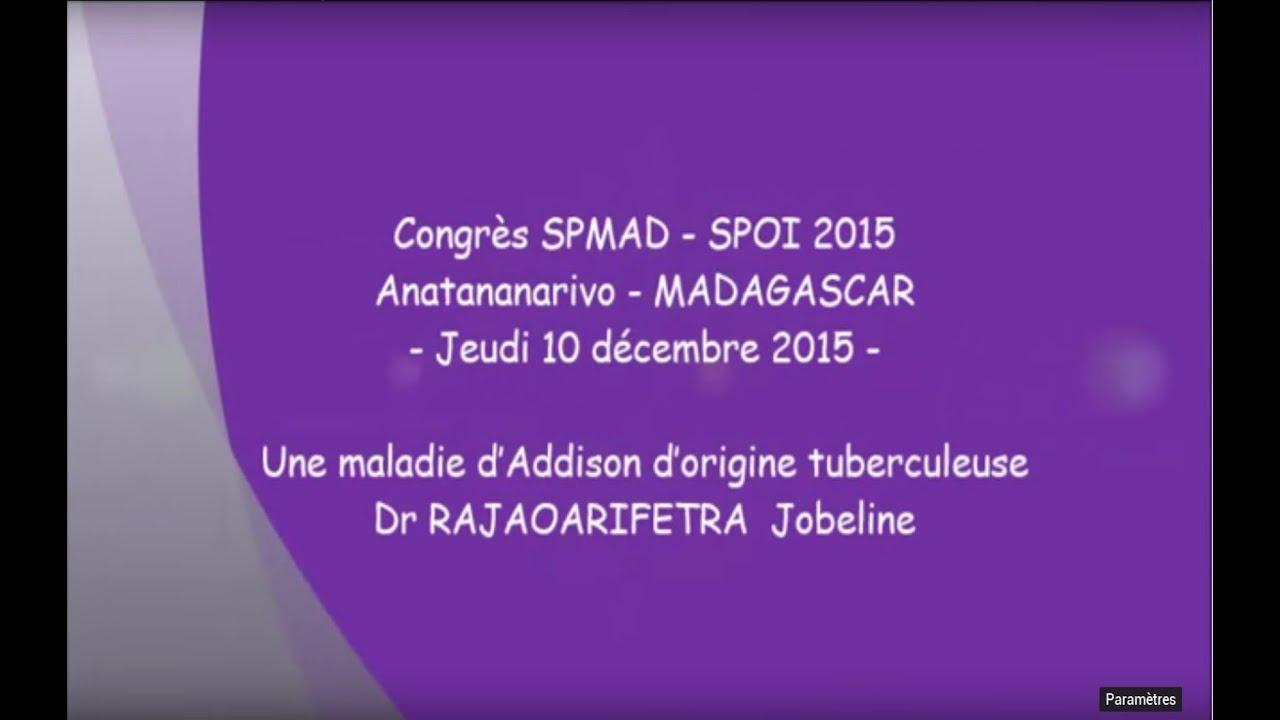 Une maladie d'Addison d'origine tuberculeuse Dr RAJAOARIFETRA Jobeline