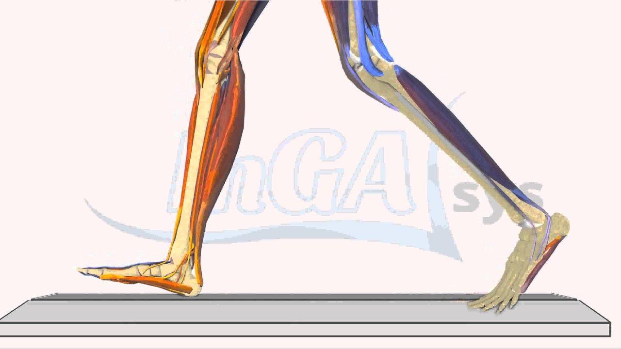 Schmerzen im Wadenbereich - InGAsys - Intelligente Ganganalyse ...